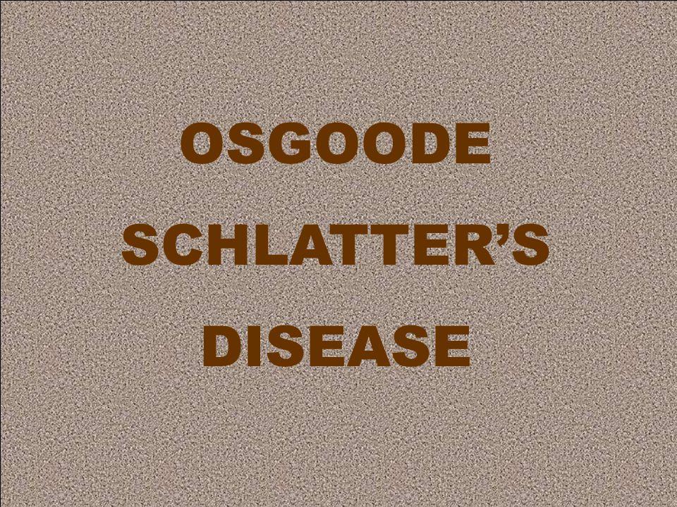 OSGOODE SCHLATTER'S DISEASE
