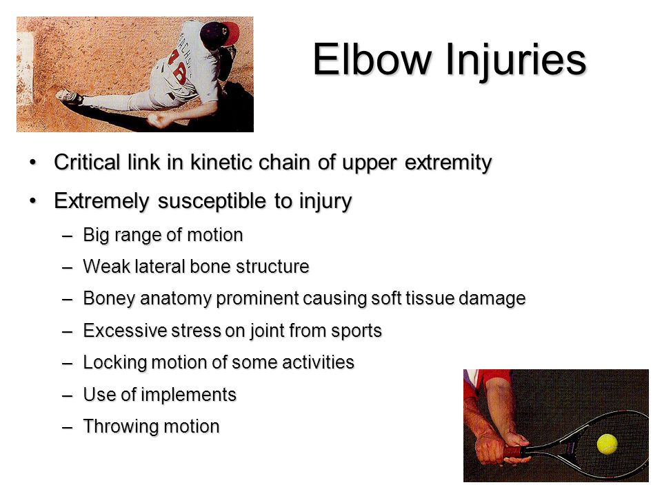 Elbow Injuries Critical link in kinetic chain of upper extremityCritical link in kinetic chain of upper extremity Extremely susceptible to injuryExtre
