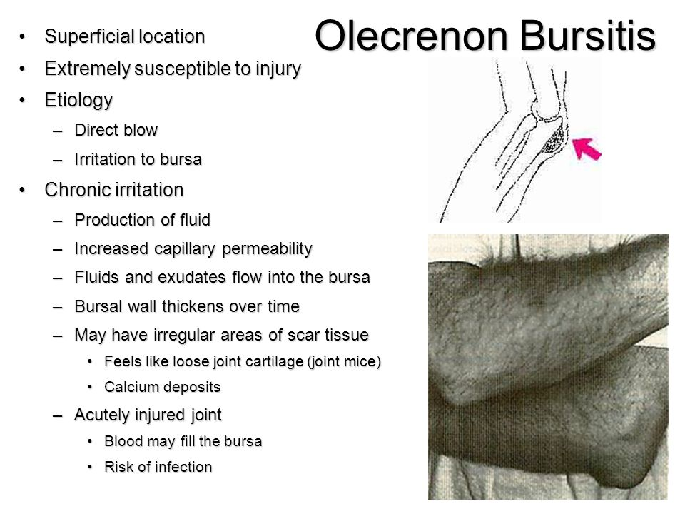 Olecrenon Bursitis Superficial locationSuperficial location Extremely susceptible to injuryExtremely susceptible to injury EtiologyEtiology –Direct bl