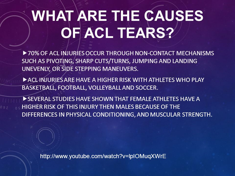 WHAT ARE THE CAUSES OF ACL TEARS?  70% OF ACL INJURIES OCCUR THROUGH NON-CONTACT MECHANISMS SUCH AS PIVOTING, SHARP CUTS/TURNS, JUMPING AND LANDING U