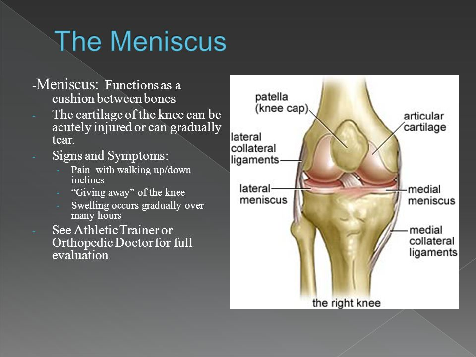 - Meniscus: Functions as a cushion between bones - The cartilage of the knee can be acutely injured or can gradually tear. - Signs and Symptoms: - Pai