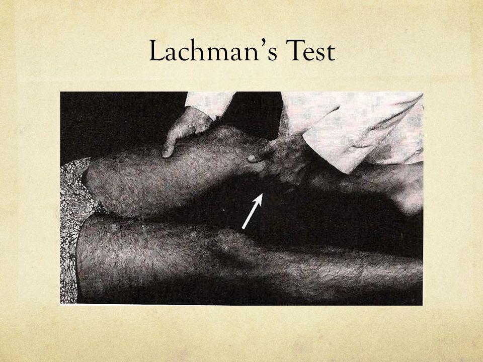 Lachman's Test