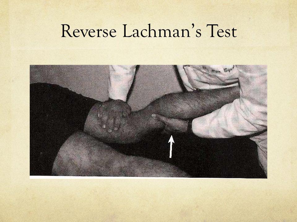 Reverse Lachman's Test