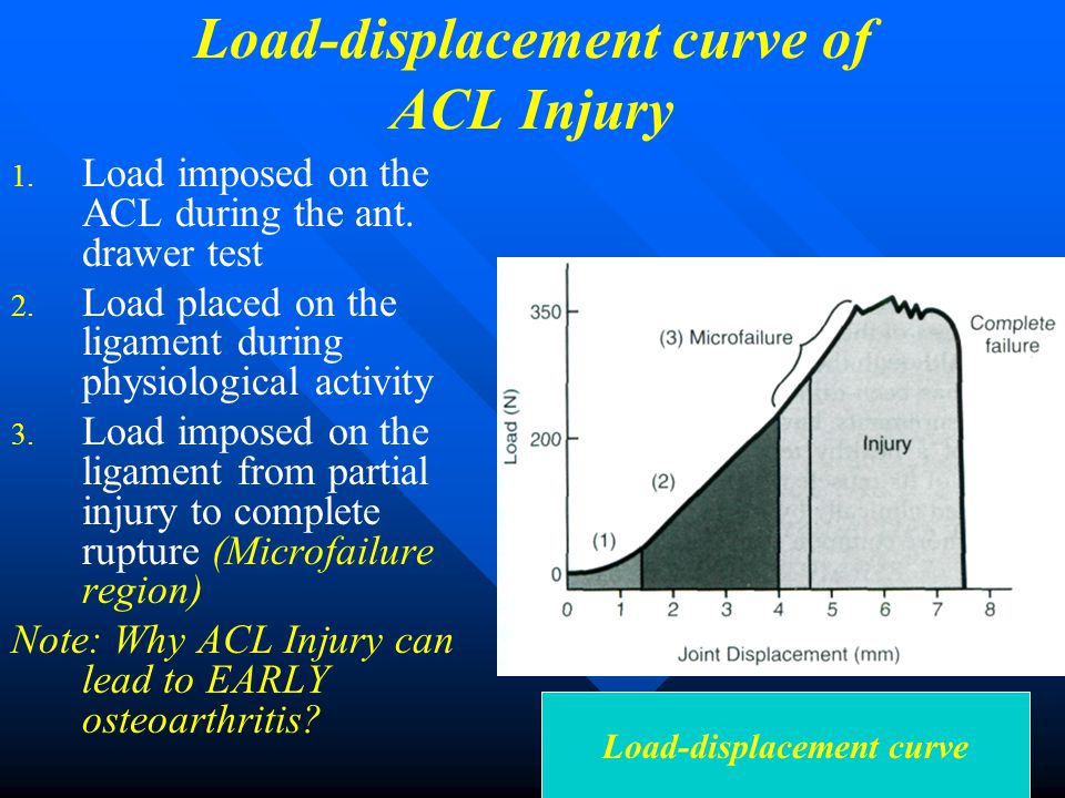 Load-displacement curve of ACL Injury Load-displacement curve 1. 1. Load imposed on the ACL during the ant. drawer test 2. 2. Load placed on the ligam