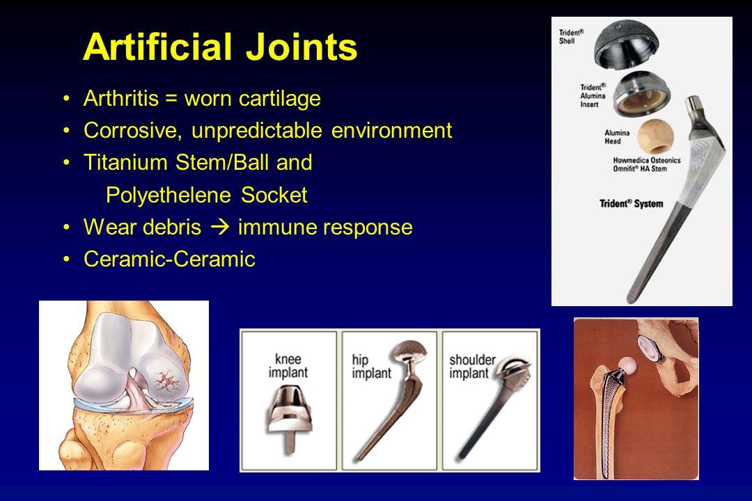 Artificial Joints Arthritis = worn cartilage Corrosive, unpredictable environment Titanium Stem/Ball and Polyethelene Socket Wear debris  immune resp