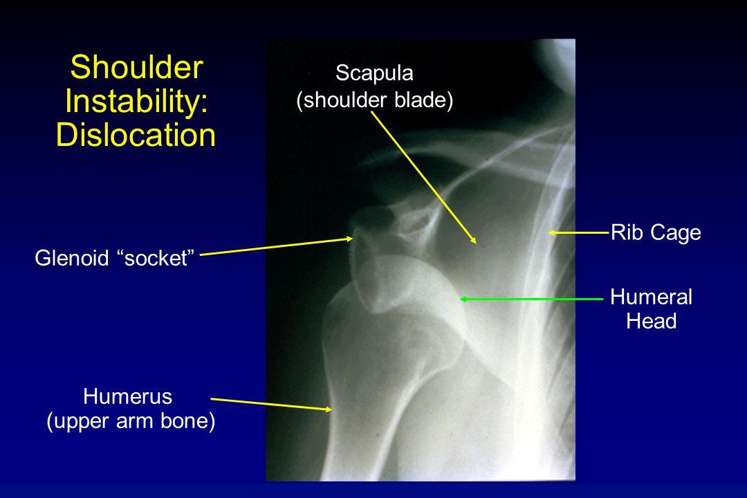 Shoulder Instability: Dislocation Glenoid socket Humerus (upper arm bone) Scapula (shoulder blade) Rib Cage Humeral Head