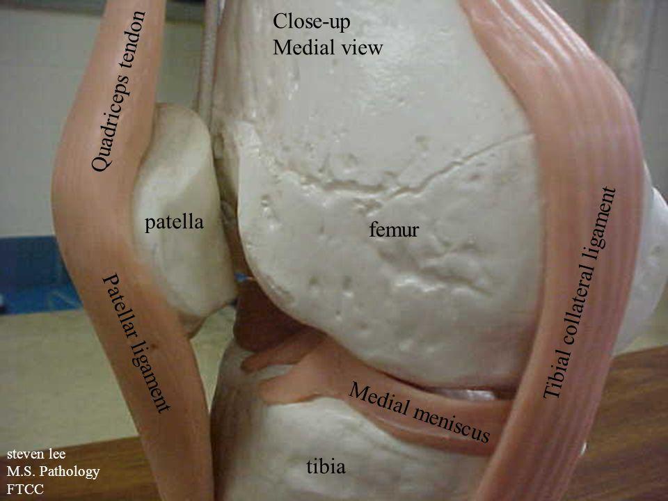 steven lee M.S. Pathology FTCC Close-up Medial view patella femur tibia Quadriceps tendon Patellar ligament Tibial collateral ligament Medial meniscus