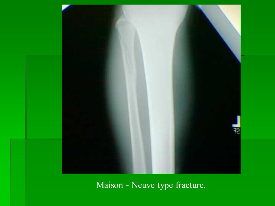 Maison - Neuve type fracture.