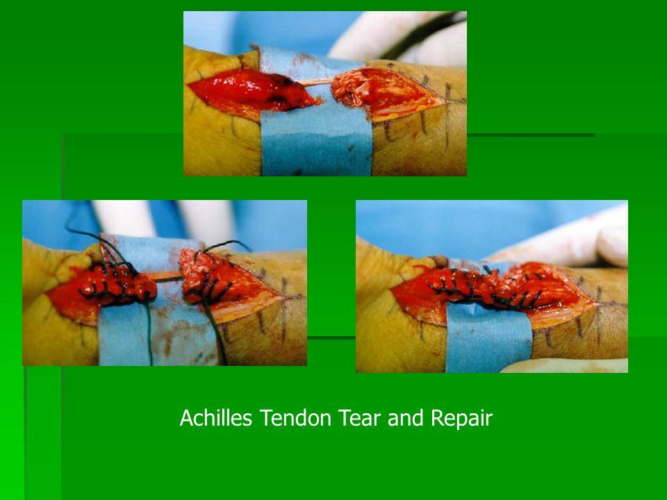Achilles Tendon Tear and Repair
