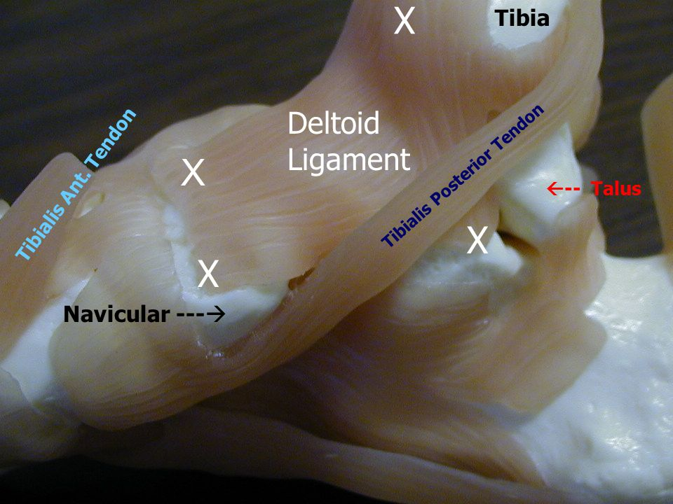 Tibia X X X Navicular ---   -- Talus Tibialis Posterior Tendon Tibialis Ant.