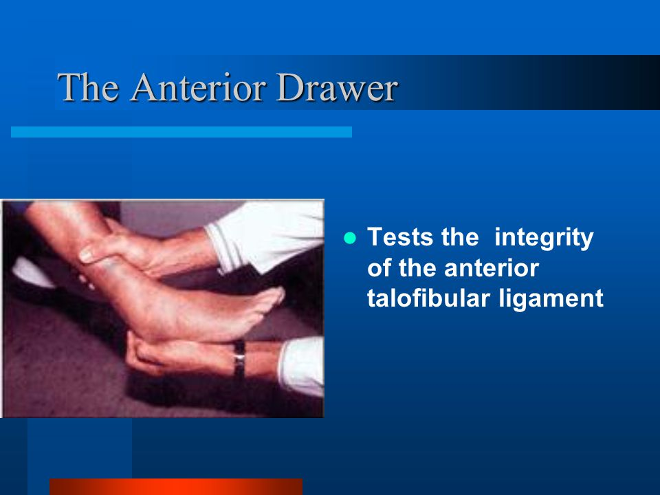 The Anterior Drawer Tests the integrity of the anterior talofibular ligament