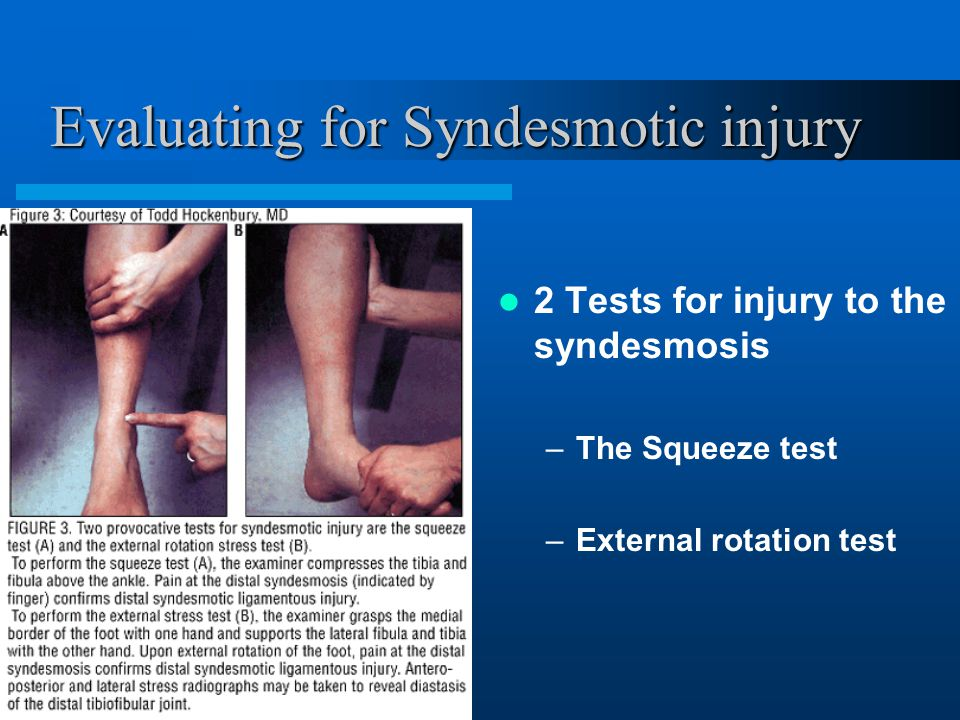 Evaluating for Syndesmotic injury 2 Tests for injury to the syndesmosis –The Squeeze test –External rotation test