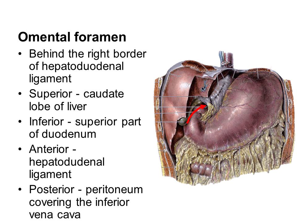 Omental foramen Behind the right border of hepatoduodenal ligament Superior - caudate lobe of liver Inferior - superior part of duodenum Anterior - he