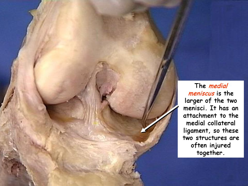 The medial meniscus is the larger of the two menisci. It has an attachment to the medial collateral ligament, so these two structures are often injure