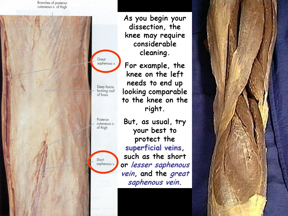 As you begin your dissection, the knee may require considerable cleaning. For example, the knee on the left needs to end up looking comparable to the