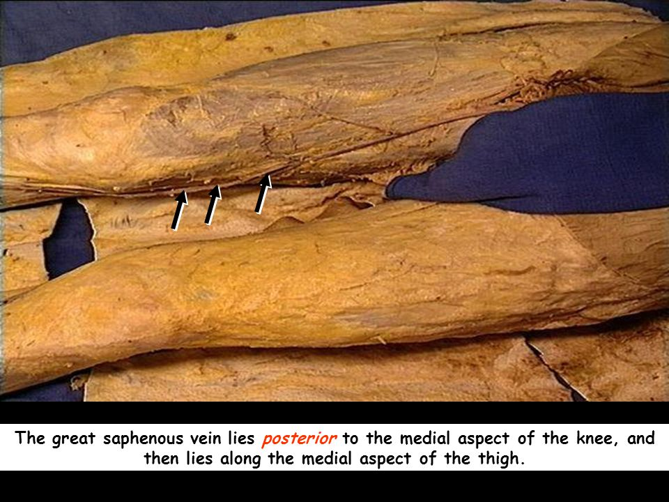 The great saphenous vein lies posterior to the medial aspect of the knee, and then lies along the medial aspect of the thigh.