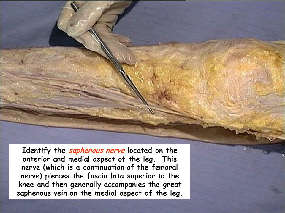 Identify the saphenous nerve located on the anterior and medial aspect of the leg. This nerve (which is a continuation of the femoral nerve) pierces t
