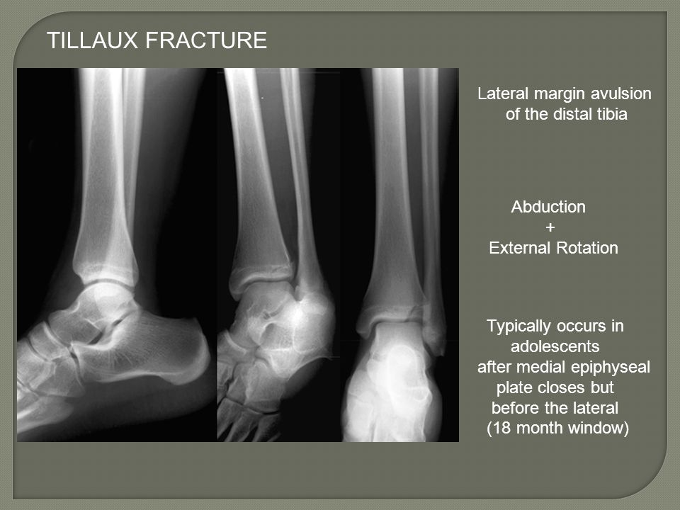 TILLAUX FRACTURE Lateral margin avulsion of the distal tibia Abduction + External Rotation Typically occurs in adolescents after medial epiphyseal pla