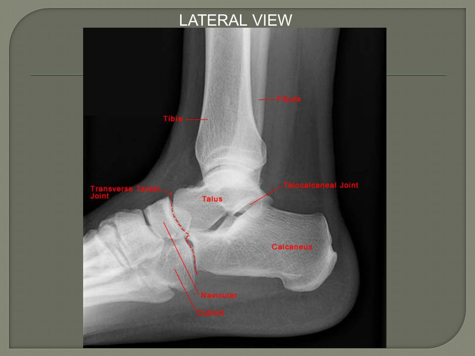  Medial Complex Medial malleolus Medial facet of the talus Superficial/deep deltoid ligament  Medial complex injuries typically occur from eversion and abduction
