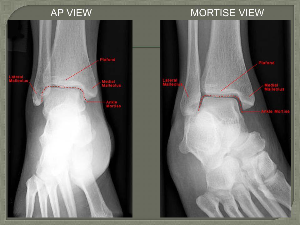 Lateral Ankle LigamentsMedial Ankle Ligaments CFL = Calcaneofibular ligament PTFL = Posterior talofibular ligament ATFL = Anterior talofibular ligament Deltoid Ligament