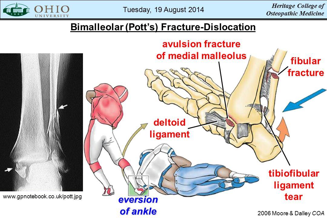 Bimalleolar (Pott's) Fracture-Dislocation 2006 Moore & Dalley COA www.gpnotebook.co.uk/pott.jpg deltoid ligament avulsion fracture of medial malleolus