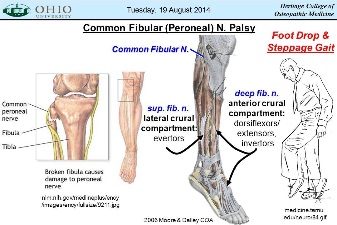Common Fibular (Peroneal) N. Palsy nlm.nih.gov/medlineplus/ency /images/ency/fullsize/9211.jpg medicine.tamu. edu/neuro/84.gif Foot Drop & Steppage Ga