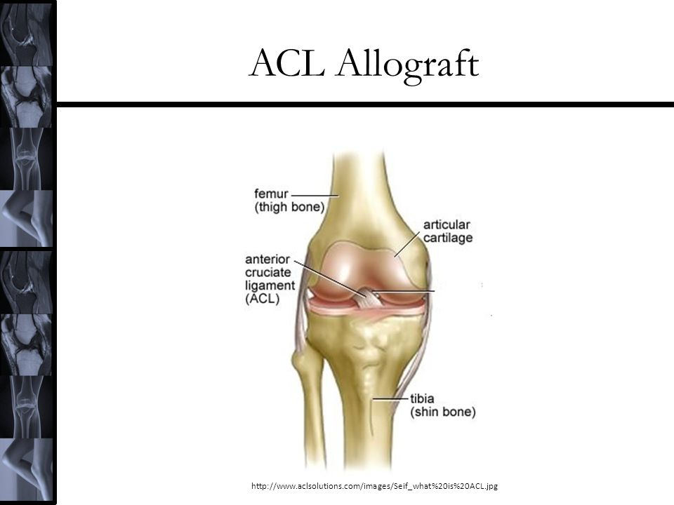 ACL Allograft http://www.aclsolutions.com/images/Seif_what%20is%20ACL.jpg