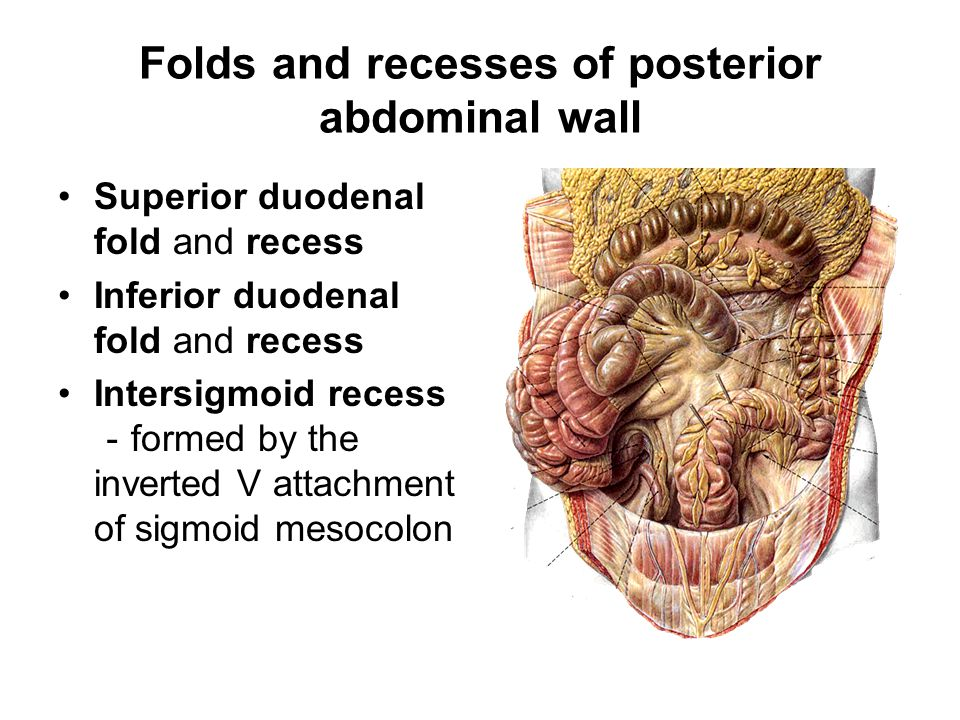 Folds and recesses of posterior abdominal wall Superior duodenal fold and recess Inferior duodenal fold and recess Intersigmoid recess - formed by the inverted V attachment of sigmoid mesocolon