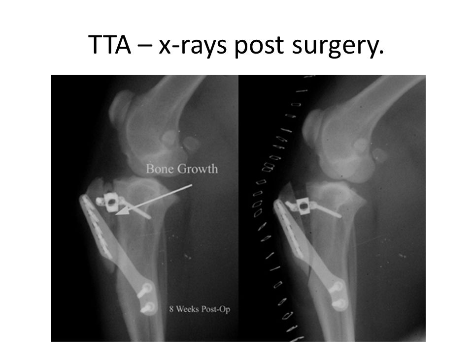 TTA – x-rays post surgery.