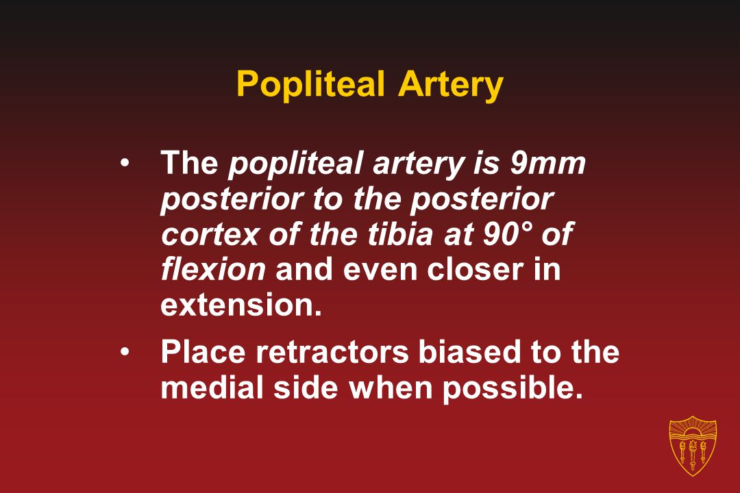 Popliteal Artery The popliteal artery is 9mm posterior to the posterior cortex of the tibia at 90° of flexion and even closer in extension. Place retr