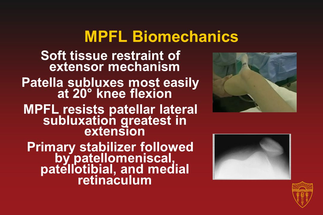 MPFL Biomechanics Soft tissue restraint of extensor mechanism Patella subluxes most easily at 20° knee flexion MPFL resists patellar lateral subluxati