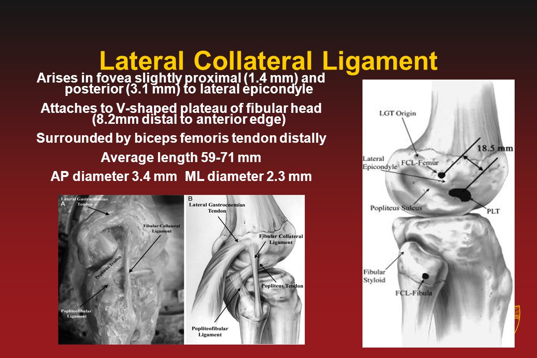 Lateral Collateral Ligament Arises in fovea slightly proximal (1.4 mm) and posterior (3.1 mm) to lateral epicondyle Attaches to V-shaped plateau of fi