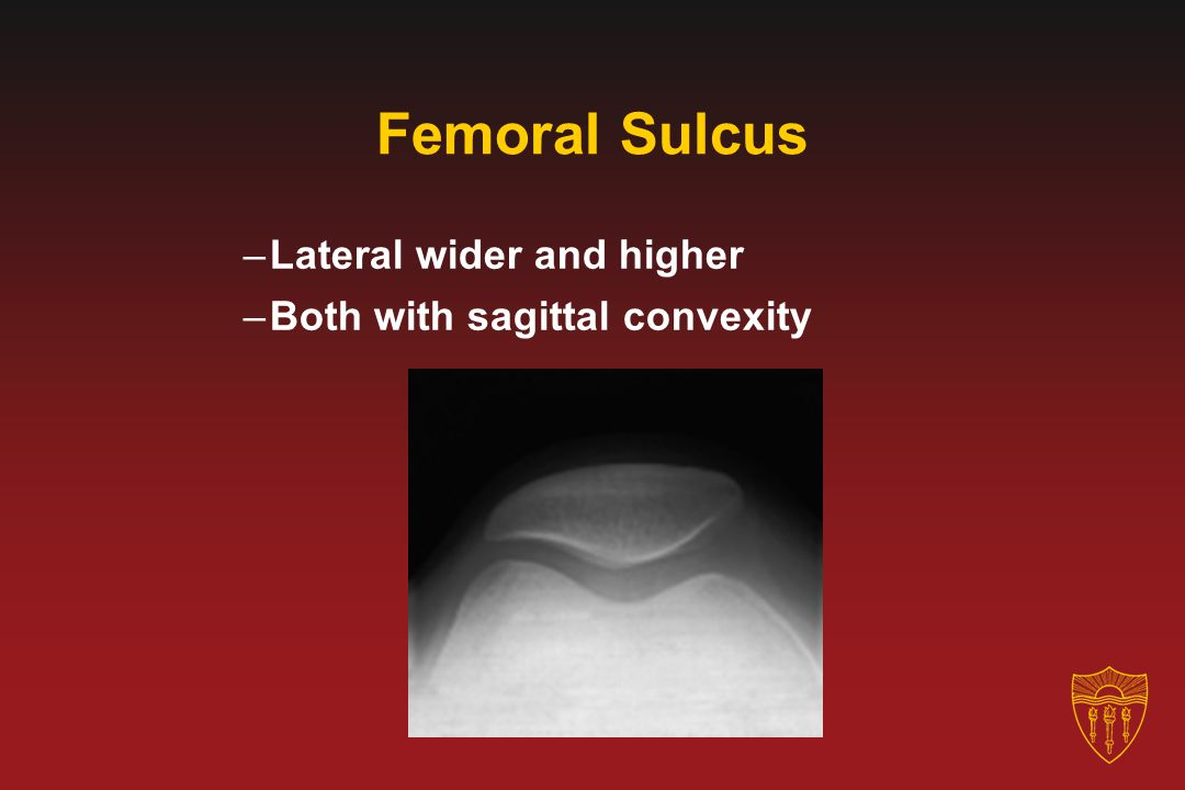 Femoral Sulcus –Lateral wider and higher –Both with sagittal convexity