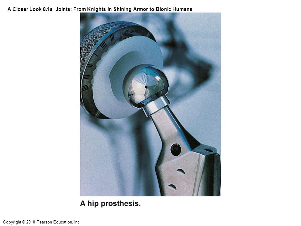Copyright © 2010 Pearson Education, Inc. A Closer Look 8.1a Joints: From Knights in Shining Armor to Bionic Humans