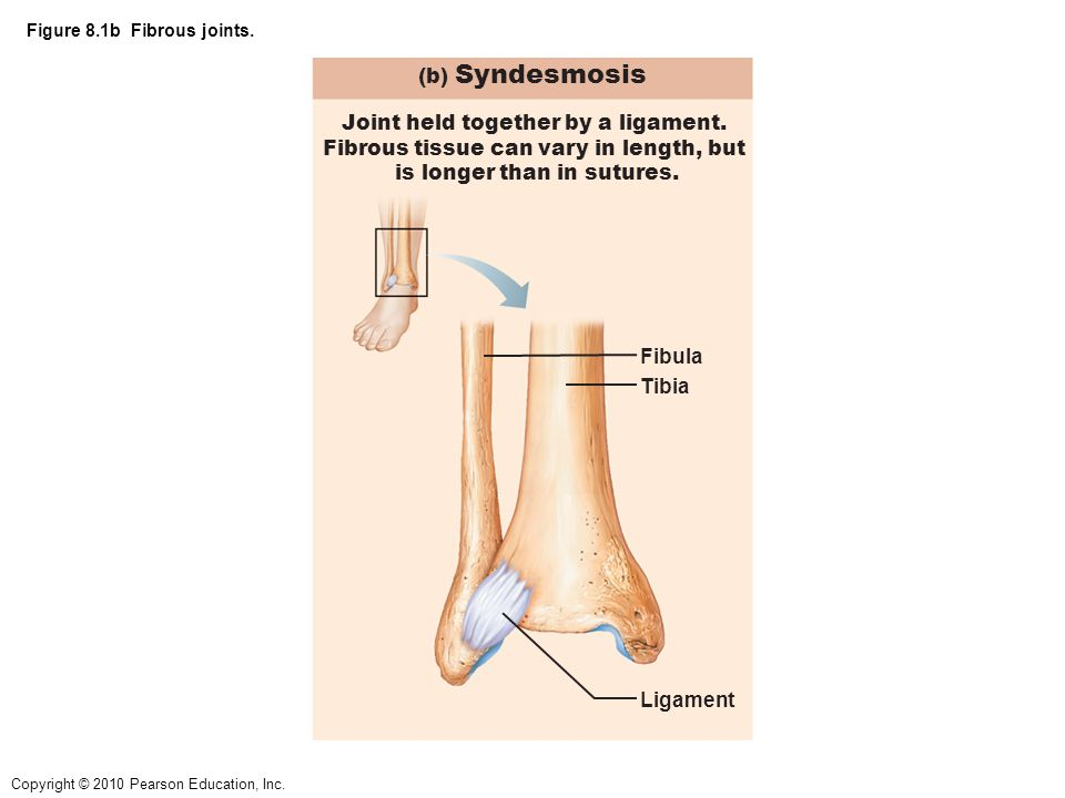 Copyright © 2010 Pearson Education, Inc.Figure 8.9 A common knee injury.