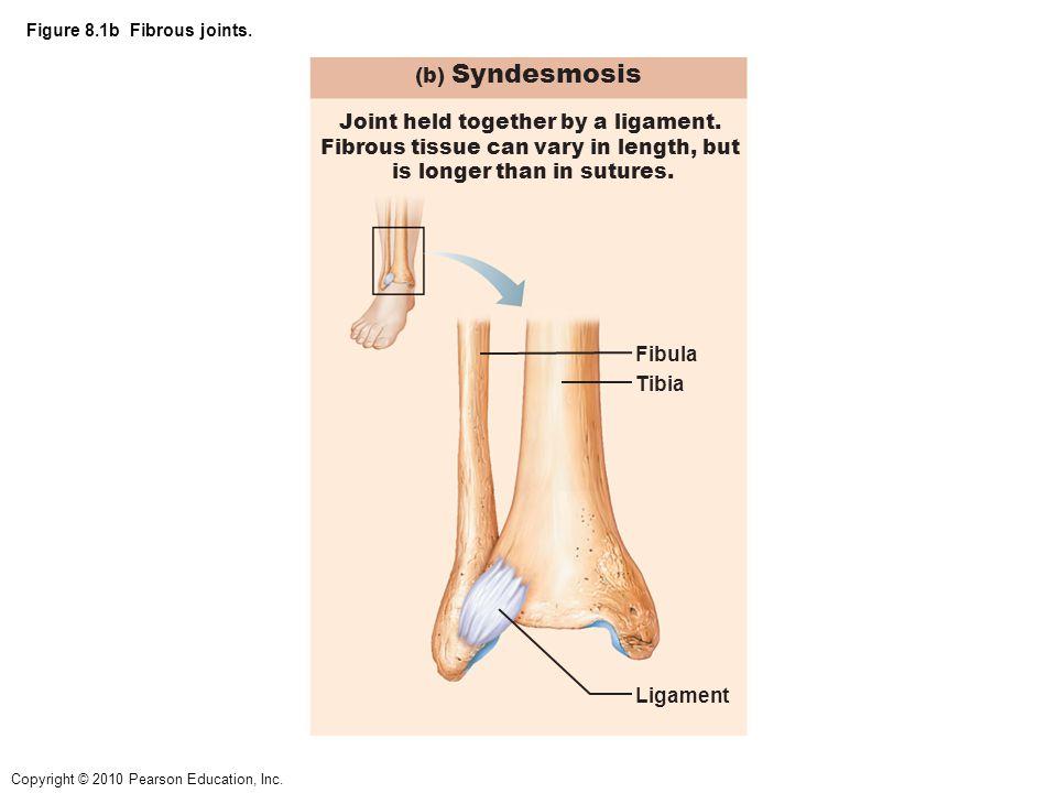 Copyright © 2010 Pearson Education, Inc.Figure 8.1c Fibrous joints.