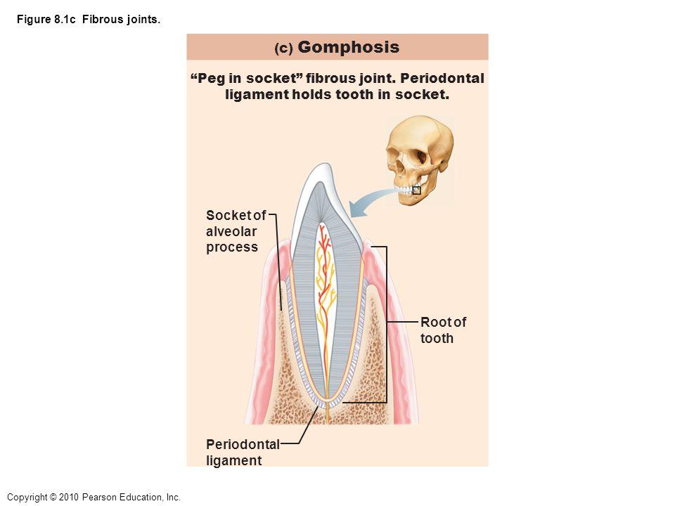 Copyright © 2010 Pearson Education, Inc.Figure 8.13a The temporomandibular (jaw) joint.