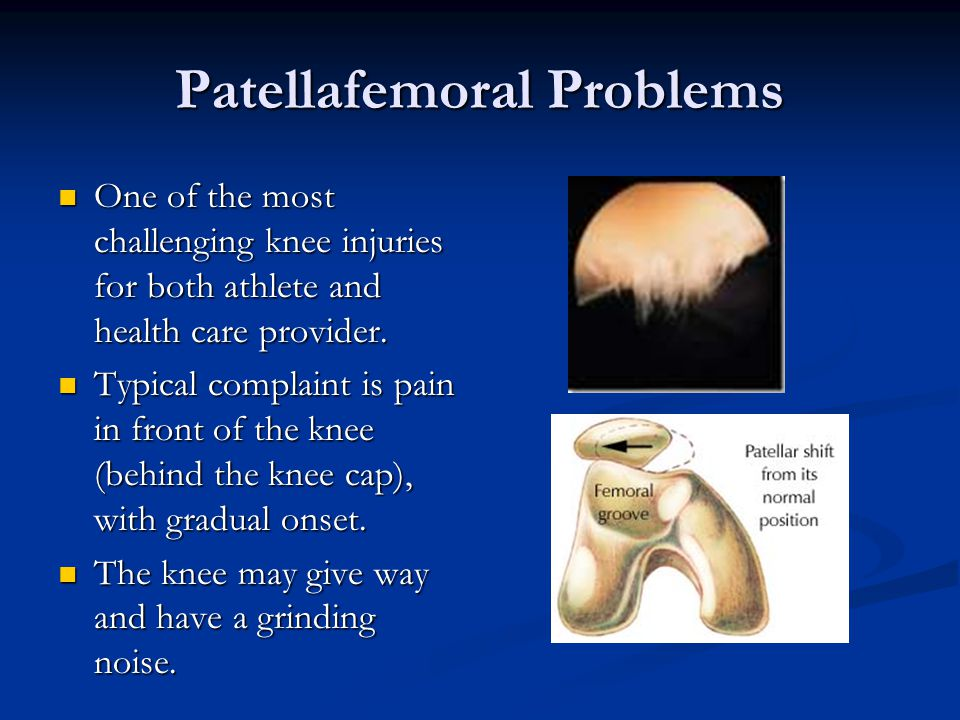 Patellafemoral Problems One of the most challenging knee injuries for both athlete and health care provider.