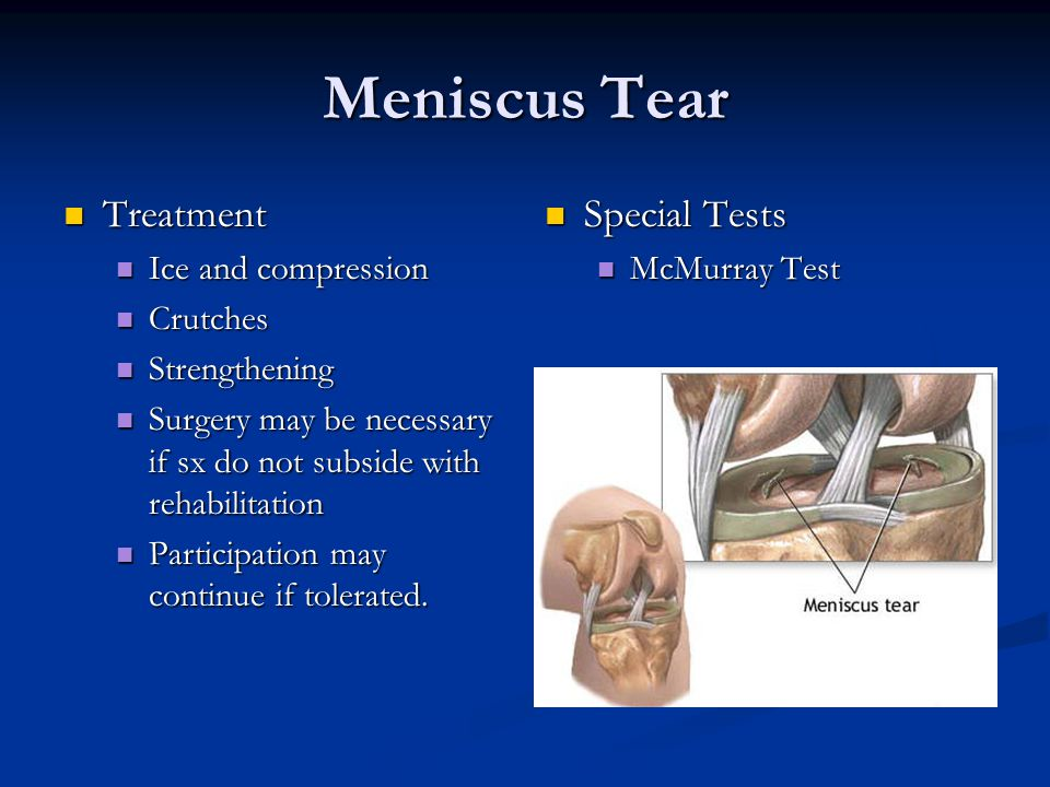 Meniscus Tear Treatment Treatment Ice and compression Ice and compression Crutches Crutches Strengthening Strengthening Surgery may be necessary if sx do not subside with rehabilitation Surgery may be necessary if sx do not subside with rehabilitation Participation may continue if tolerated.