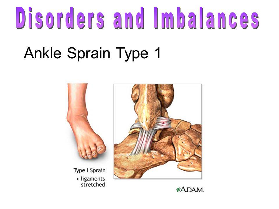 Ankle Sprain Type 1