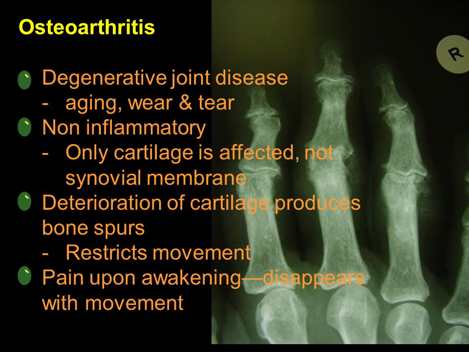 Osteoarthritis Degenerative joint disease -aging, wear & tear Non inflammatory -Only cartilage is affected, not synovial membrane Deterioration of car