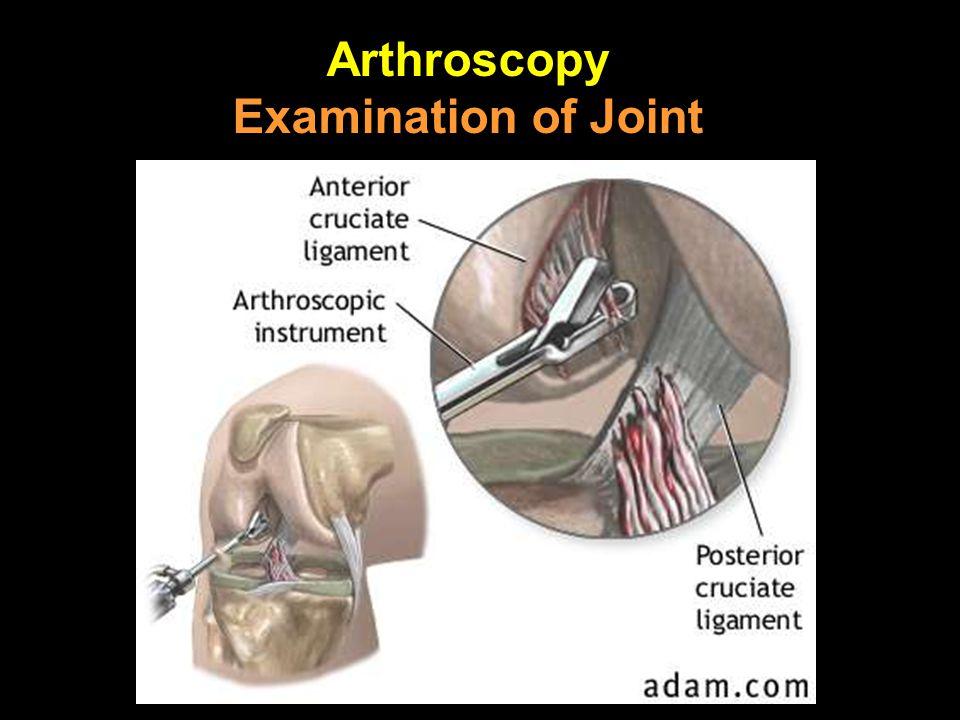 Arthroscopy Examination of Joint