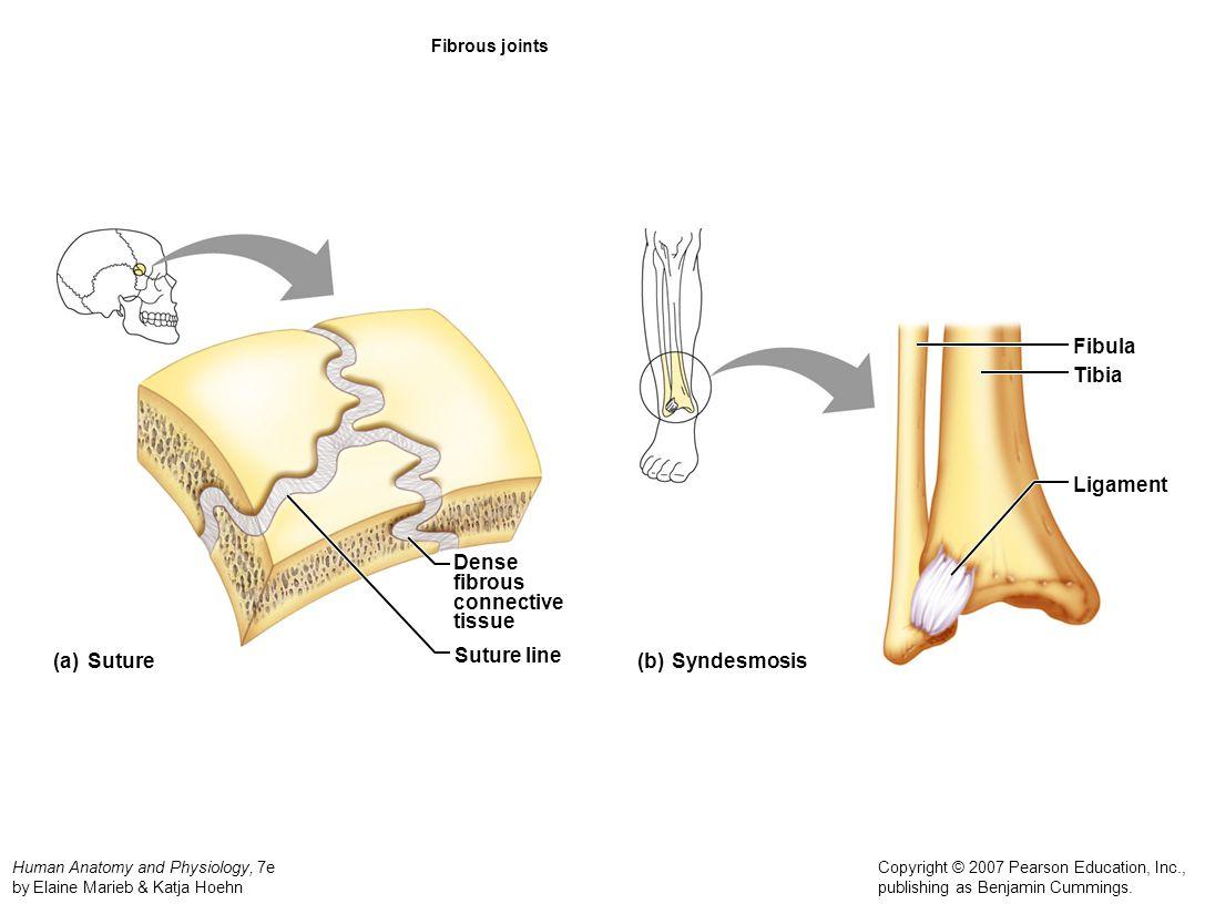 Human Anatomy and Physiology, 7e by Elaine Marieb & Katja Hoehn Copyright © 2007 Pearson Education, Inc., publishing as Benjamin Cummings. Fibrous joi