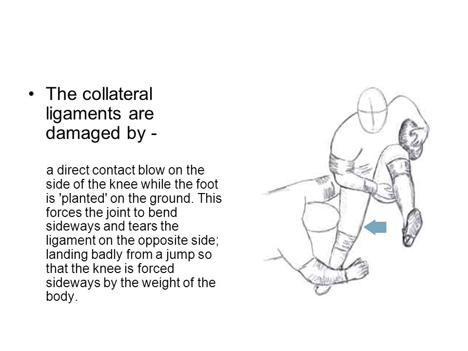 The collateral ligaments are damaged by - a direct contact blow on the side of the knee while the foot is planted on the ground.