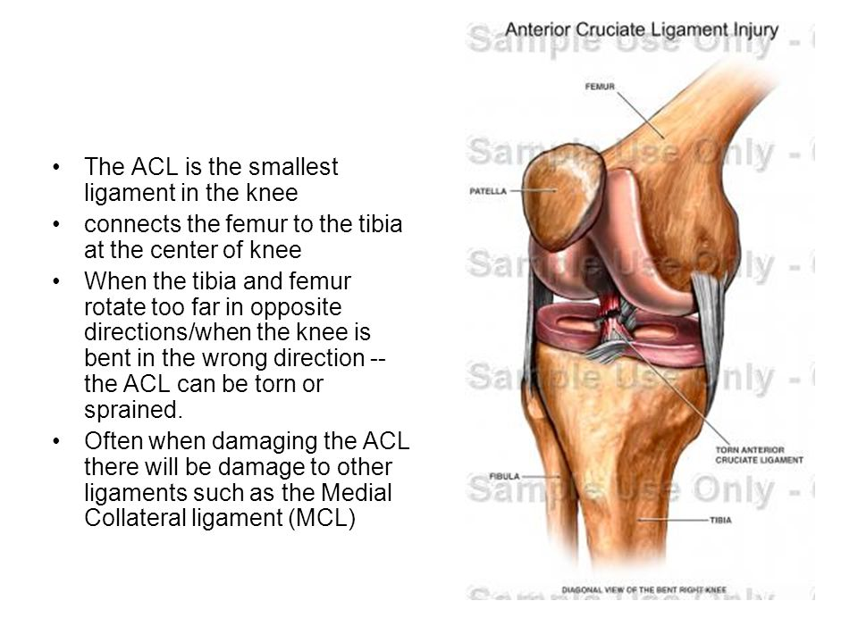 The ACL is the smallest ligament in the knee connects the femur to the tibia at the center of knee When the tibia and femur rotate too far in opposite directions/when the knee is bent in the wrong direction -- the ACL can be torn or sprained.