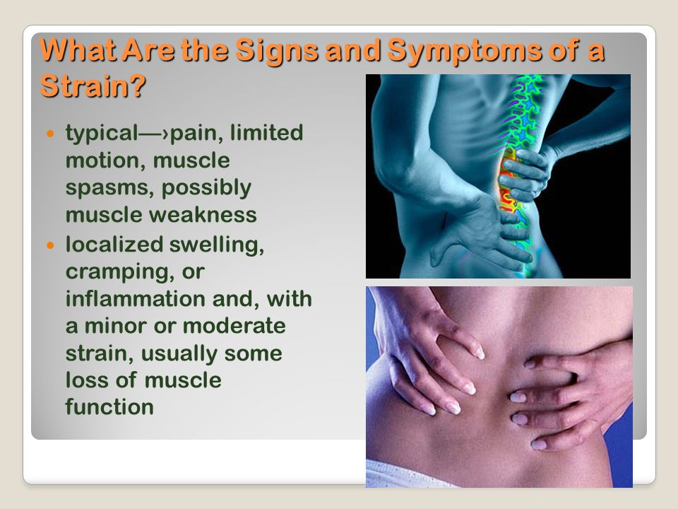What Are the Signs and Symptoms of a Strain? typical—›pain, limited motion, muscle spasms, possibly muscle weakness localized swelling, cramping, or i