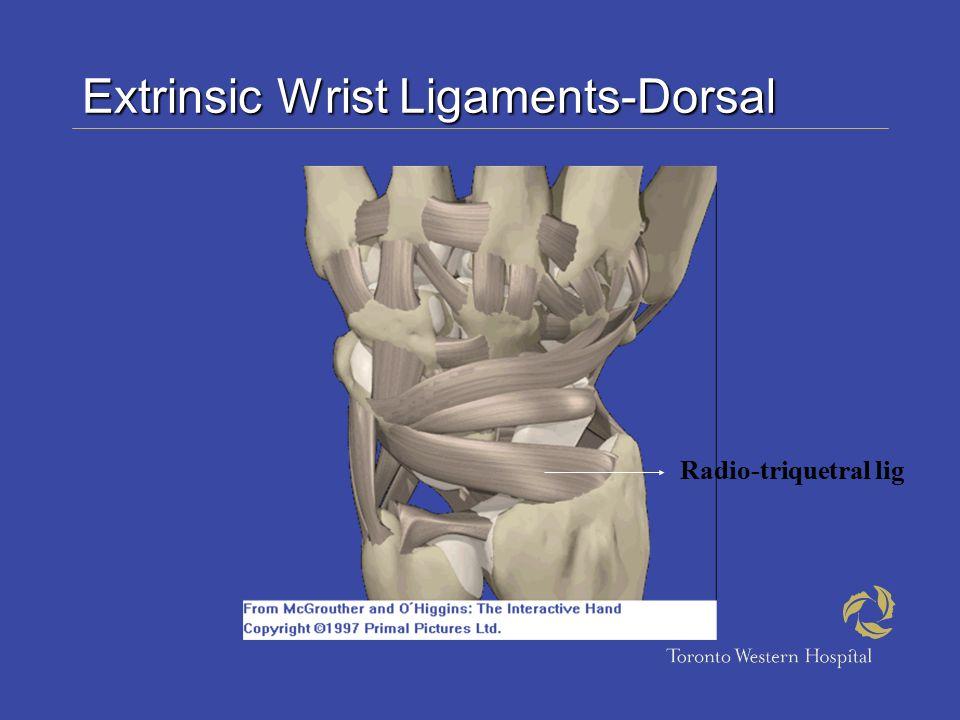 Extrinsic Wrist Ligaments-Dorsal Radio-triquetral lig