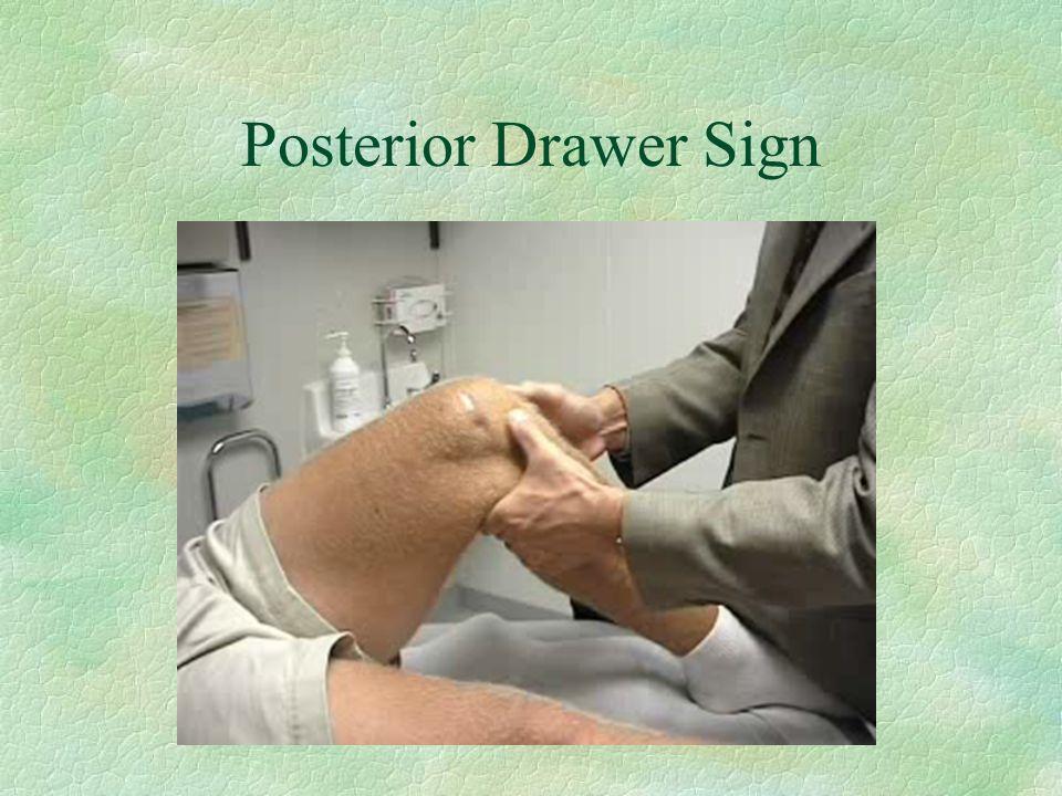 Posterior Drawer Sign