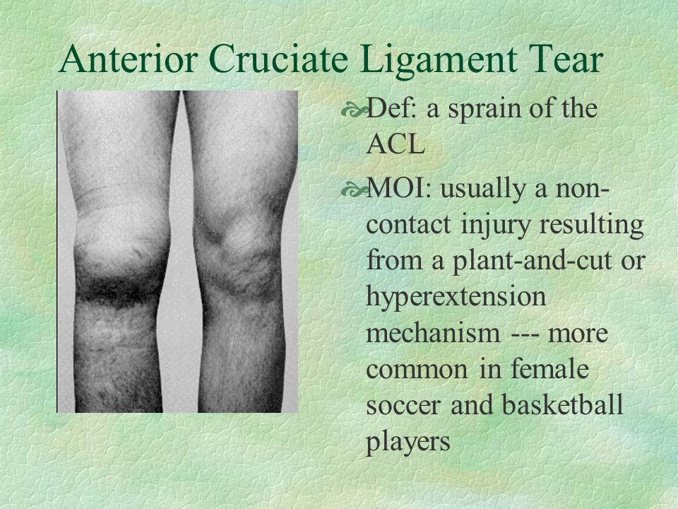Anterior Cruciate Ligament Tear  Def: a sprain of the ACL  MOI: usually a non- contact injury resulting from a plant-and-cut or hyperextension mechanism --- more common in female soccer and basketball players