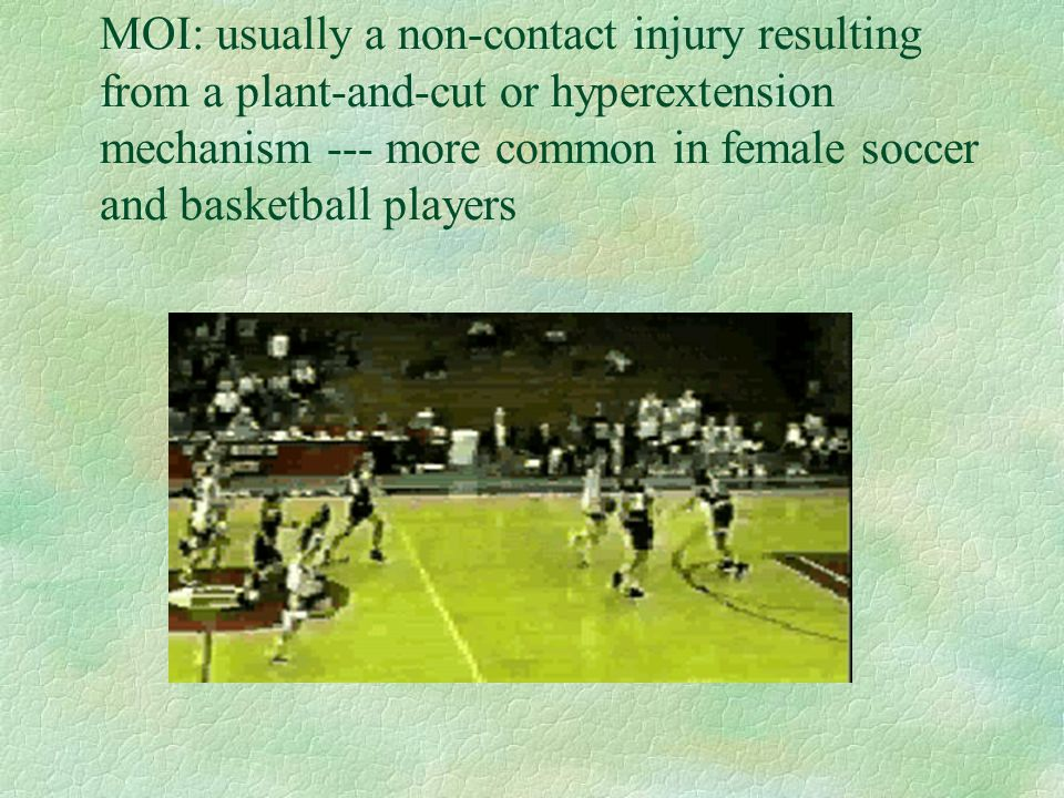 MOI: usually a non-contact injury resulting from a plant-and-cut or hyperextension mechanism --- more common in female soccer and basketball players